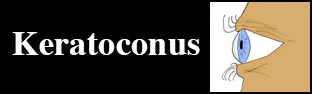 Keratoconus Resources Title