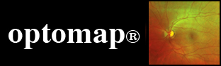 optomap® Examination