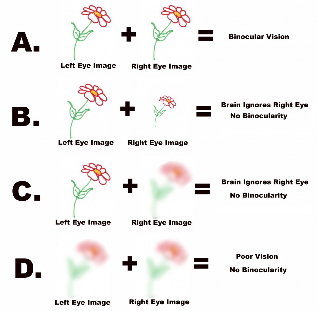 how to take a sight test alberta
