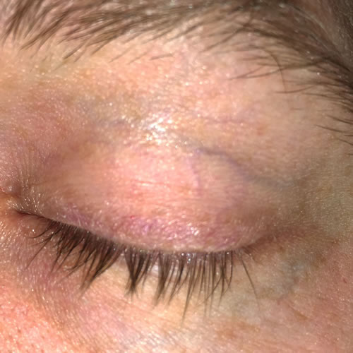 seborrheic dermatitis eyelids